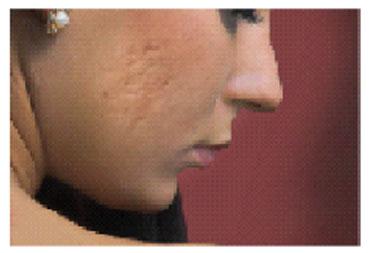 Acnesil Silicone Scar Gel – AristaCare4U com